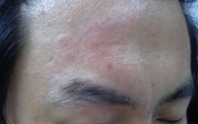 面部长白斑额头的白斑面积大了怎么回事