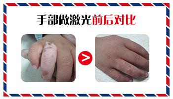 手指上的白癜风比较难治疗吗