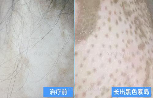 白癜风白斑汗毛变白还能恢复原色吗