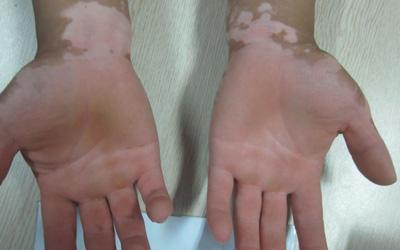手心白癜风属于什么类型
