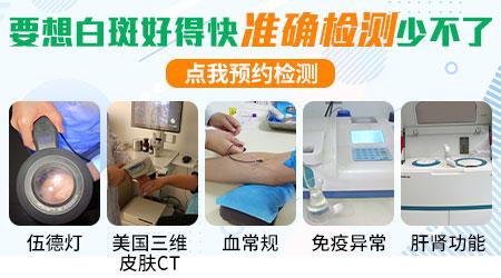 白癜风患者必须做免疫功能检查吗