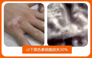 皮肤ct检查白斑基底层色素基本缺失什么意思