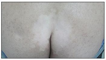 臀部白斑2个月了有点扩大怎么办