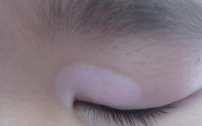 九个月宝宝眼皮处有一个白块