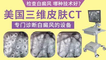 三维皮肤ct检查白斑多少钱