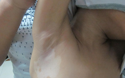 腋下白斑图片 白斑怎么回事