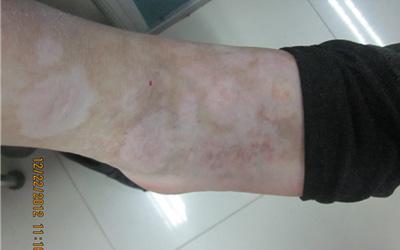 为什么脚上有零零星星的小白斑