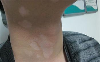 脖子侧面有小白点是什么疾病