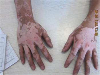 男性手指骨节长白癜风的初期图片