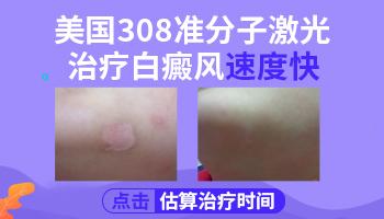 308激光治疗白斑前后对比照