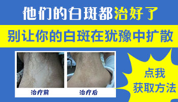 男性大腿根部的白点有扩散是什么情况
