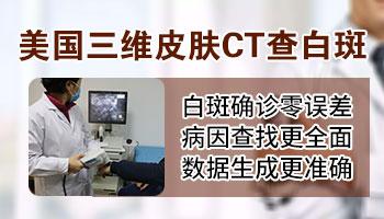 邯郸白癜风医院有三维皮肤ct吗