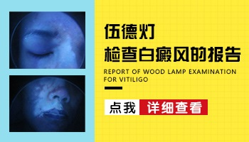 伍德灯下的白癜风图片 白斑能治好吗