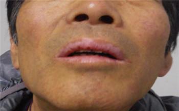 男性嘴部白癜风早期症状的图片
