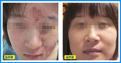 脸上白癜风植皮手术前后照片