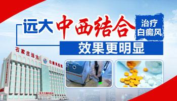 全国治白癜风的医院排名