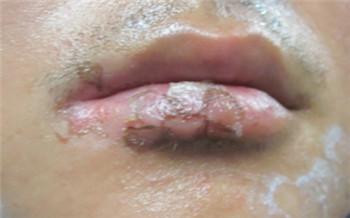 嘴唇白癜风脱色严重多久能治好