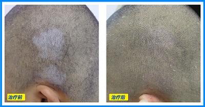 头皮上的白斑可以做黑色素细胞移植吗