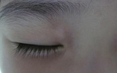 孩子眼睛下面有几个小白斑是什么