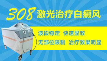治疗白癜风的激光仪多少钱