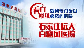 沧州有没有专门治白癜风的医院