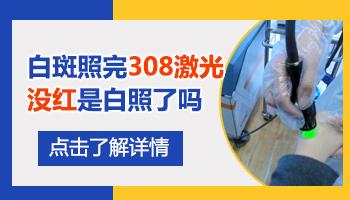 沧州白癜风医院照激光一个光斑多少钱
