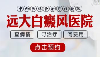 河北沧州治疗白癜风的医院是哪家