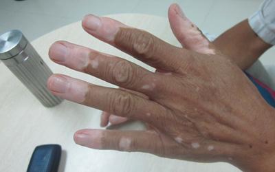手指末端的白癜风扩散的快吗