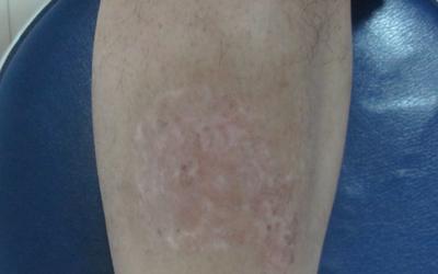 小腿长小白色点点是什么原因