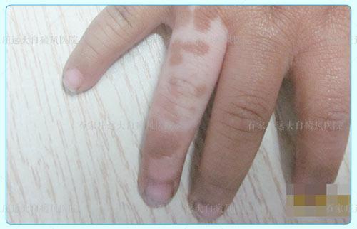 手指背面出现白斑原因