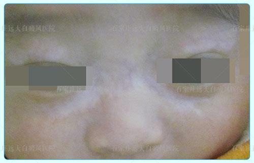 婴幼儿额头上有白斑图片