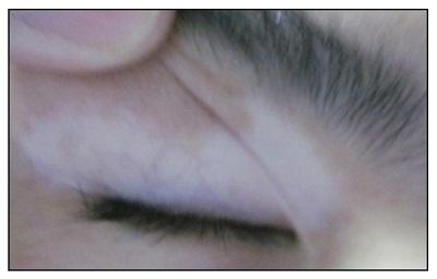眼皮上边白一块是白癜风的症状吗
