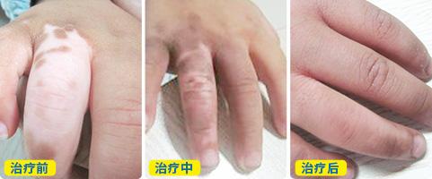 手指白癜风白斑植皮手术后图片