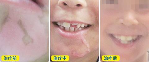 七岁男孩嘴边白癜风一个月了治疗没效果