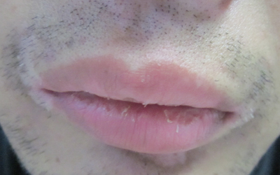唇线白了一圈是白癜风吗