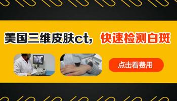 白癜风做三维皮肤ct扫描图片