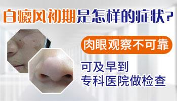白癜风症状表现图片 初期白癜风怎么治