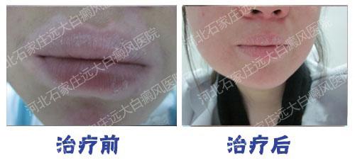 嘴唇上的白斑光疗能照好吗