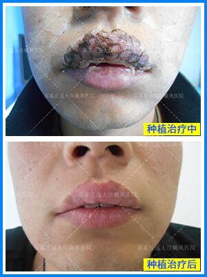 脸部植皮手术后恢复图