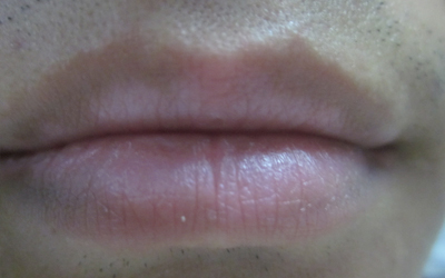 上嘴唇突然有一块皮肤变白了