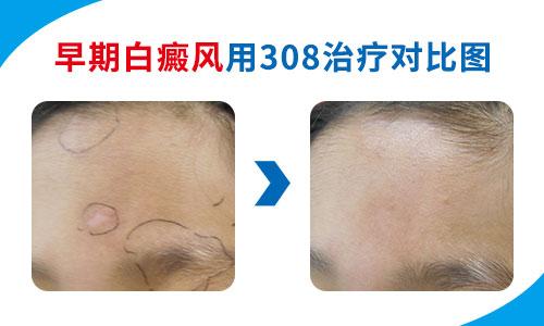 轻度白癜风图片 初期小白斑容易治愈吗