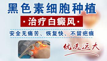 沧州哪家医院能做白癜风表皮移植手术