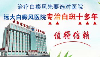 多年的白癜风在沧州白癜风医院能看好吗