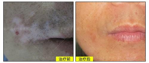 手背和嘴唇白斑有半年了控制不住还在发展
