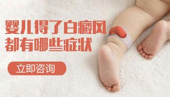 婴幼儿白斑图片 白癜风早期症状图