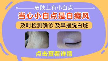 女性手指关节长白斑是什么原因