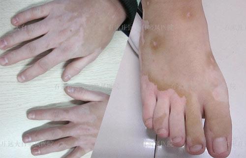 皮肤上有隐隐约约的两片白斑