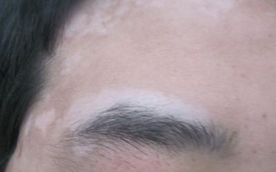 眉毛白一块 眉毛白斑对比图