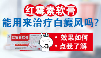 白癜风能涂抹红霉素软膏吗