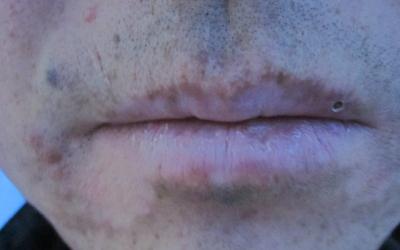 嘴角密密麻麻小白点图片